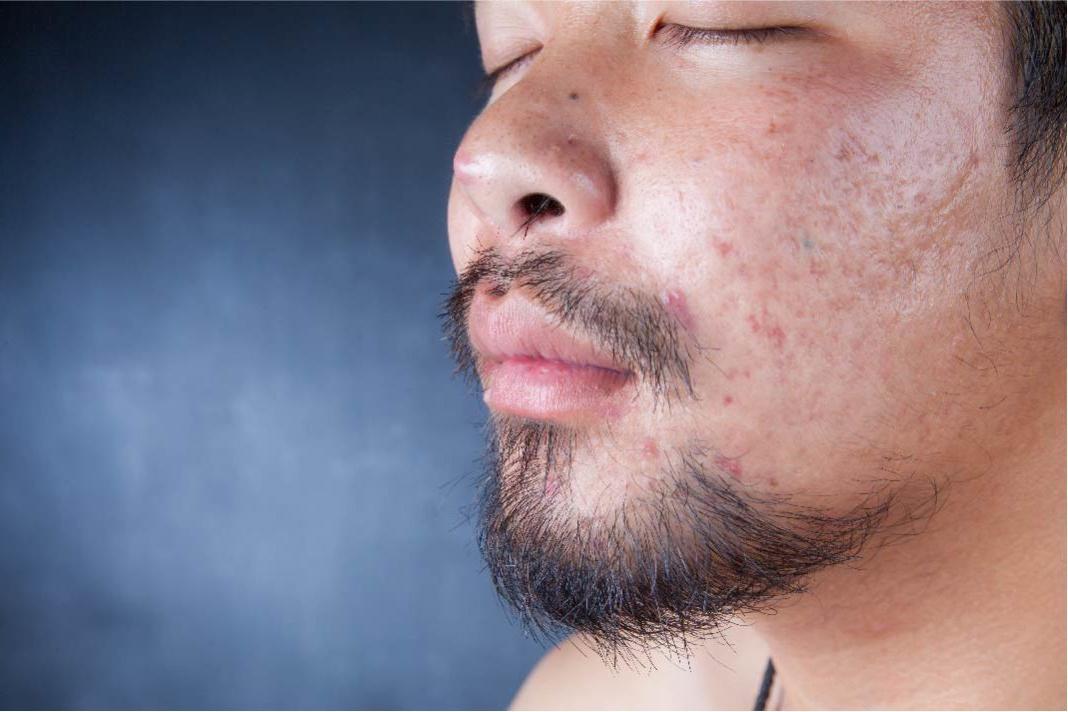 Ямки и дырочки на лице от прыщей